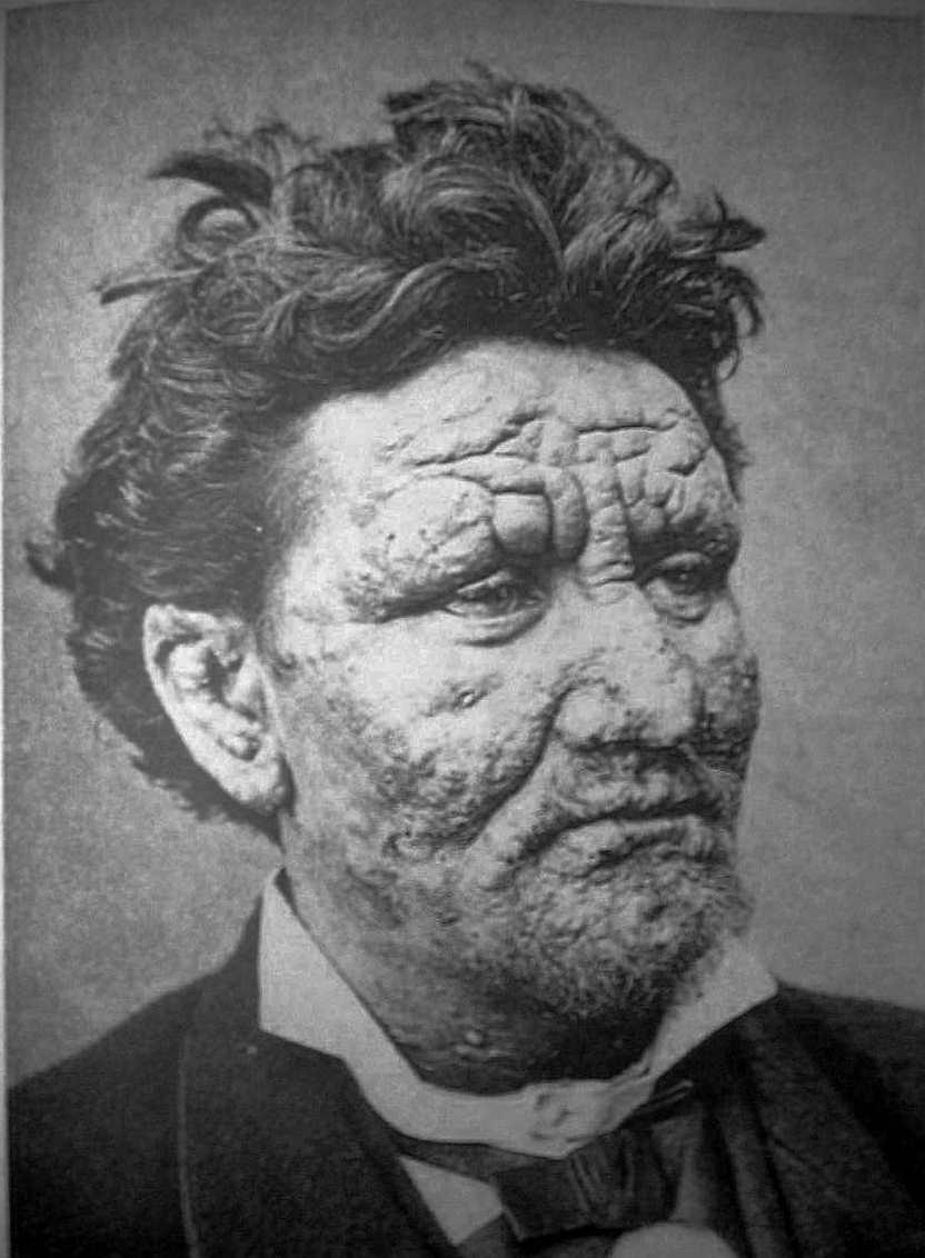 external image leprosy.jpg